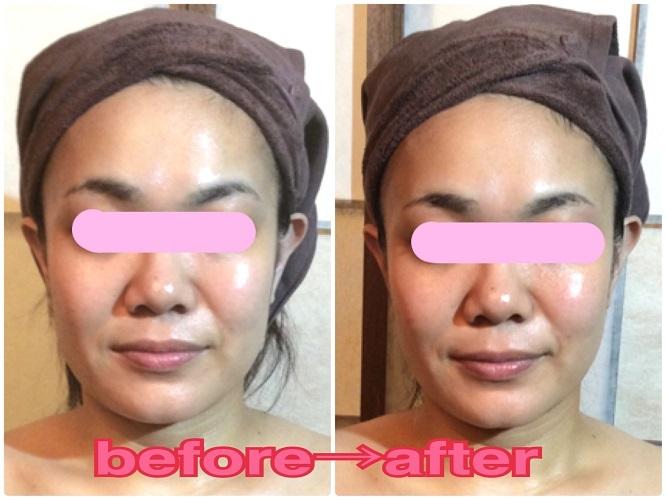 小顔筋フェイシャル施術後の結果写真